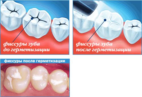 Гермитизация зубов что это